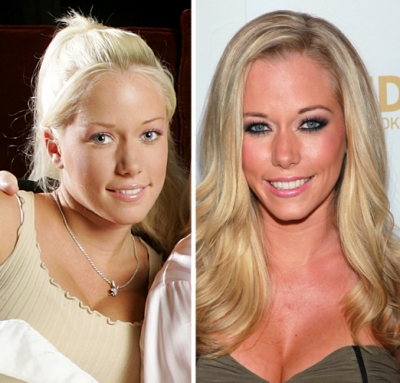 Kendra Wilkinson in 2004 (left) and in 2011 (right)