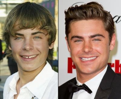 Zac Efron in 2004 (left) and in 2012 (right)