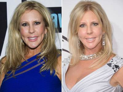 'The Real Housewives of Orange County's' Vicki Gunvalson appears on Bravo's 'Watch What Happens Live' on April 1, 2013 / Vicki Gunvalson pre-surgery on May 4, 2012